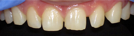 Space between teeth - before