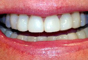 Whitening with composite re-contouring Dunning Dental Care - After