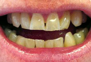 Whitening with composite re-contouring Dunning Dental Care - Before